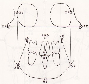 Cephalometric Analysis - Ricketts Frontal Anatomy 2