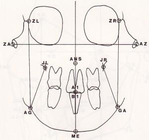 Cephalometric Analysis
