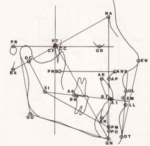 Cephalometric Tracing